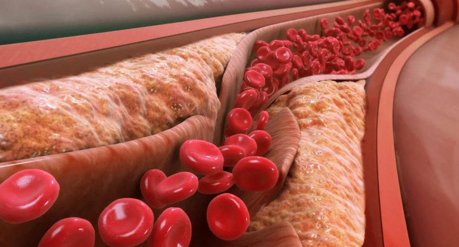 Атеросклероз: симптомы и признаки