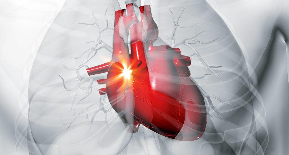 Инфаркт миокарда клинические рекомендации