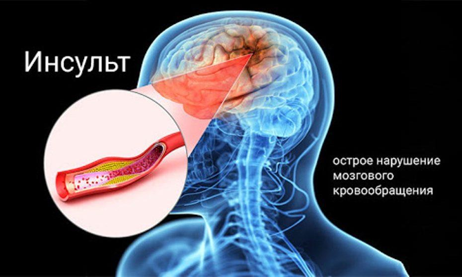 Как организм предупреждает об инсульте
