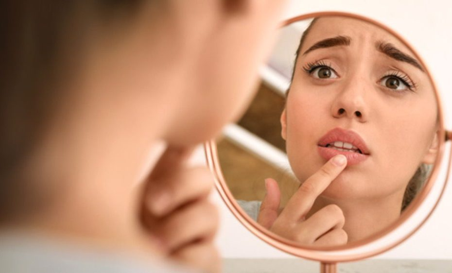 Психосоматика герпеса на губах у женщин