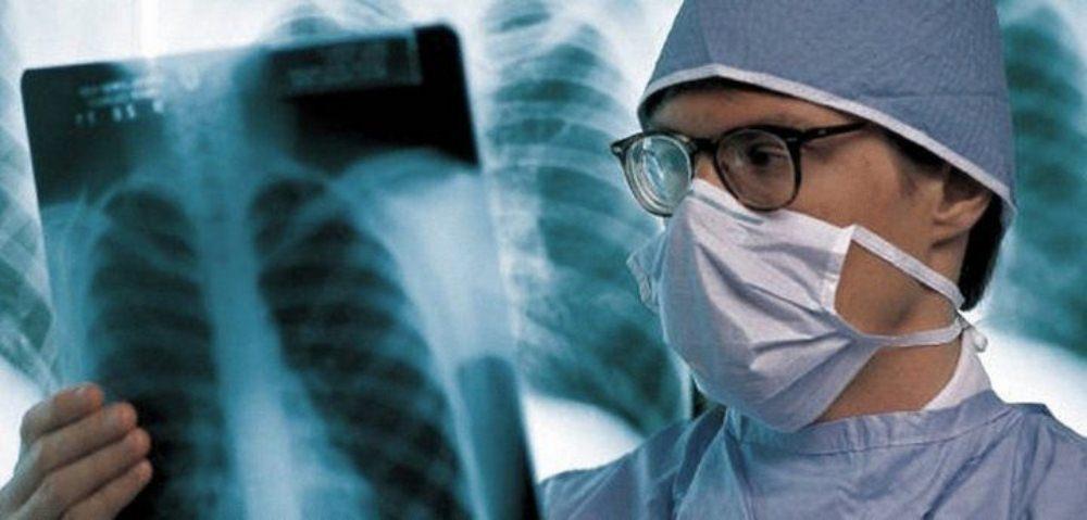 Воспаление легких-диагностика