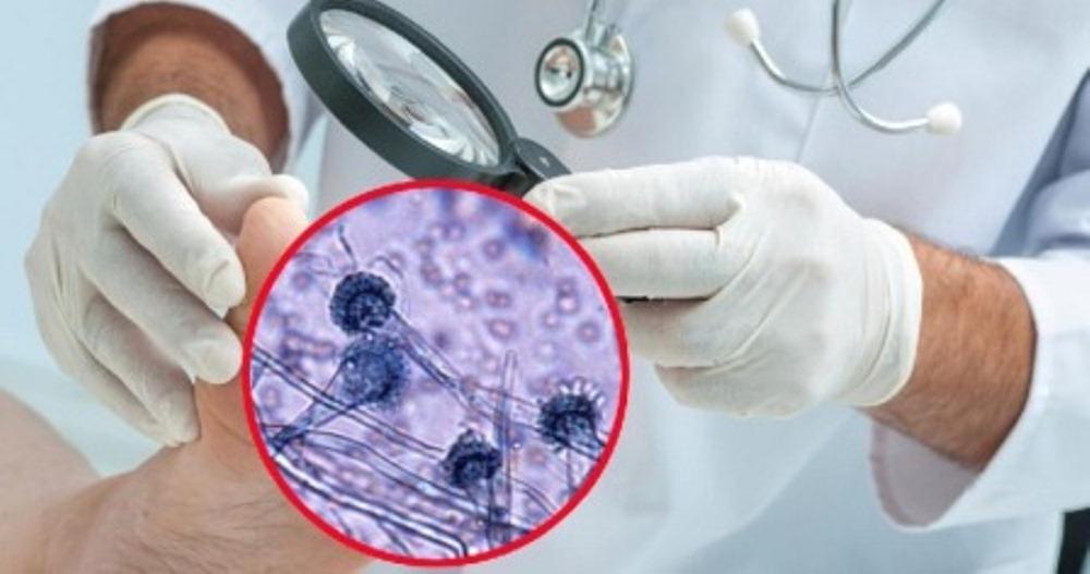 лечение грибка ногтей на ногах препараты отзывы
