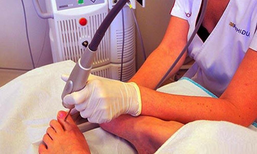 лечение грибка ногтей препараты для наружного применения