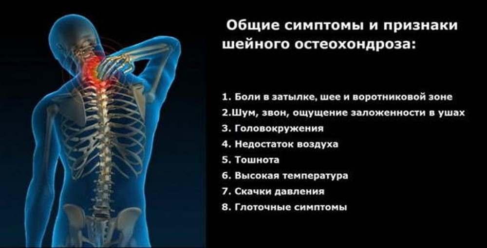 шейный остеохондроз симптомы у женщин ощущения