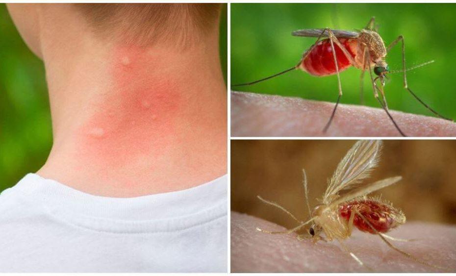 что помогает от укусов комаров снять зуд